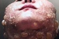 Στην εντατική έπειτα από λίφτινγκ προσώπου που της προκάλεσε φρικιαστικά εγκαύματα (φωτό)