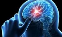 Πώς μπορεί να προληφθεί το εγκεφαλικό: Τα πρώιμα συμπτώματα